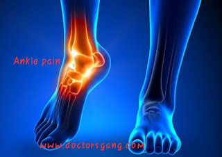 Ankle pain : causes and Prevention of ankle pain