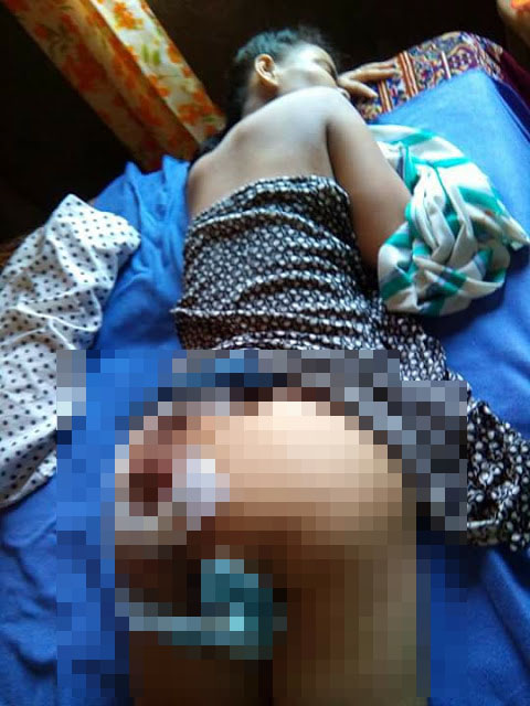 Netizen Seeks Help for This 29-Year-Old Mother Who Can't Stand or Walk Because of the Injuries on Her Behind!