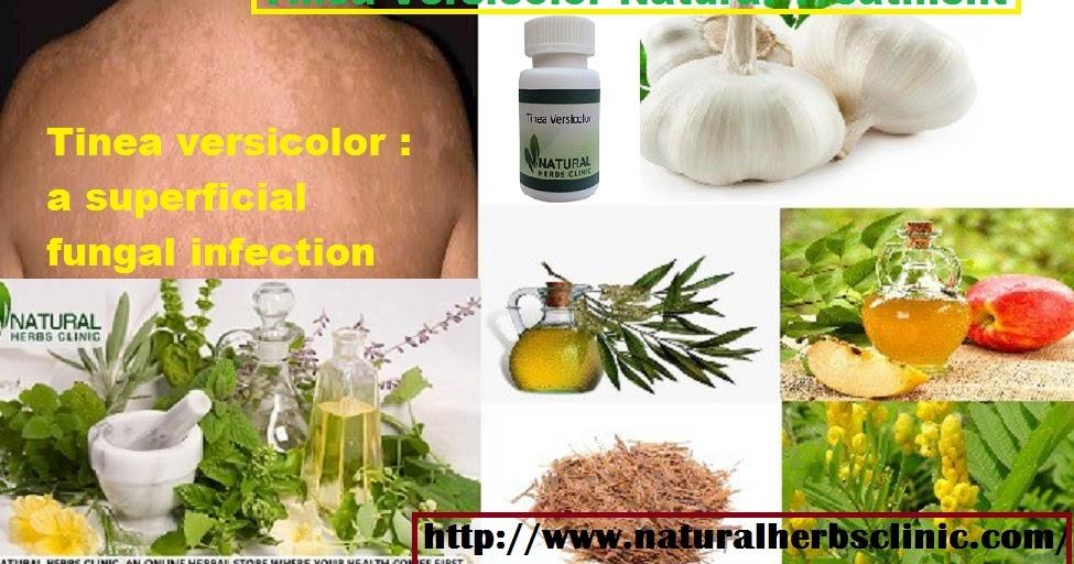 Pityrosporum Ovale Natural Treatment