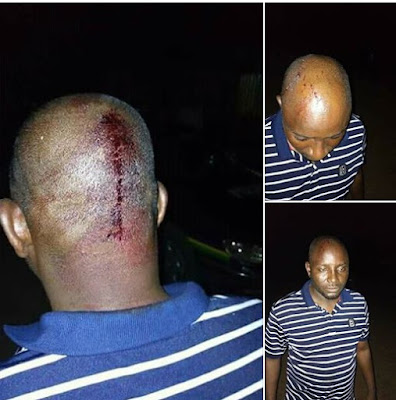 Politician Attacked By Thugs, Left With Broken Head (Photos)