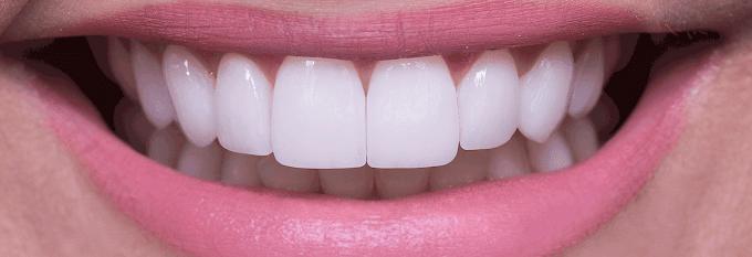 Tratamento dos famosos: Lente de contato dental é opção para evidenciar a beleza facial