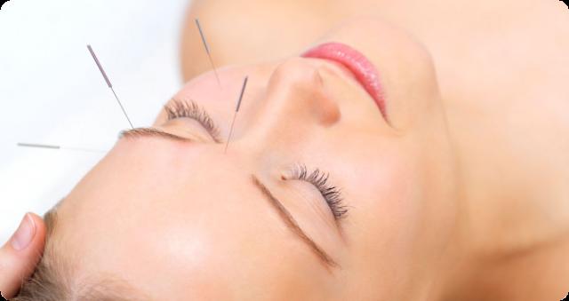 acupuncture face