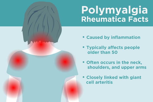 is an inflammatory condition that usually affects the muscles