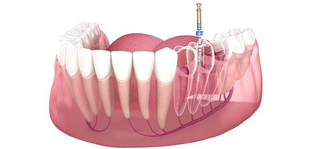 Endodontic Services
