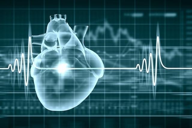Para que serve o marcapasso cardíaco, como funciona e como é feita a cirurgia para colocar
