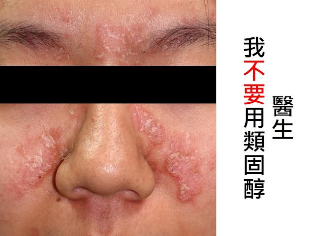 臺中皮膚科推薦 | 蔡逸群醫師: 脂漏性皮膚炎:能不用類固醇? | 蔡逸群醫師