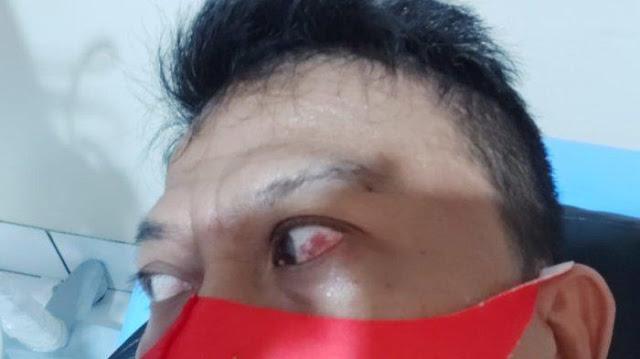 Pendukung Gibran, Agung Walet Keluar RS Habis Digebuki, Sekarang di Polisi