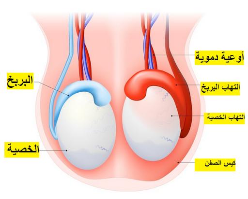 تورم و احمرار و ألم في الخصيتين التهاب الخصية والبربخ Orchitis-and-epididymis