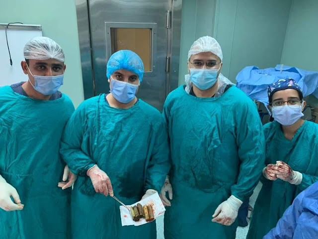شاهد بالصور.. أطباء قسم الجراحة بقصر العيني يستخرجون 6500 جنيه من معدة مواطن في عملية جراحية