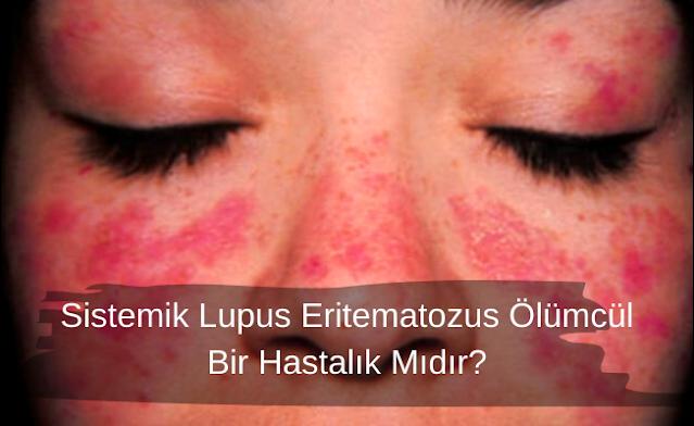 Kelebek (Lupus) Hastaliği Nedir?