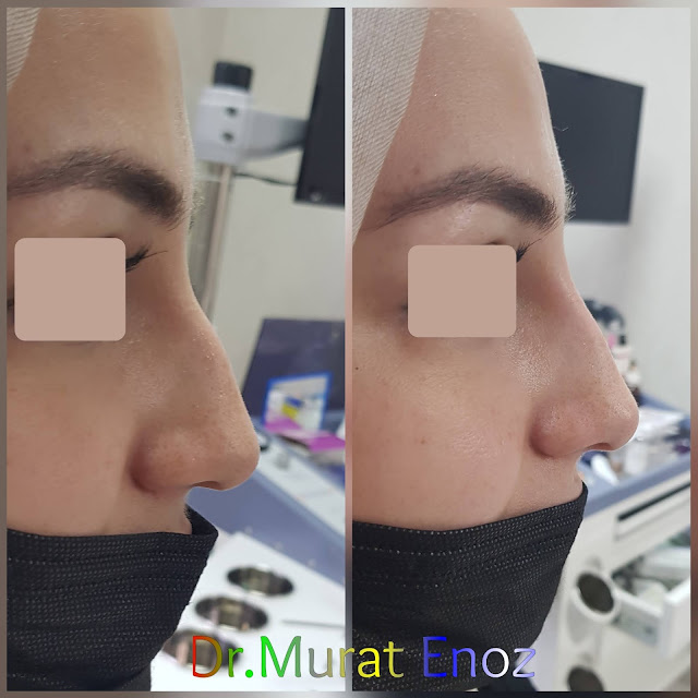 Non-surgical rhinoplasty with filler istanbul