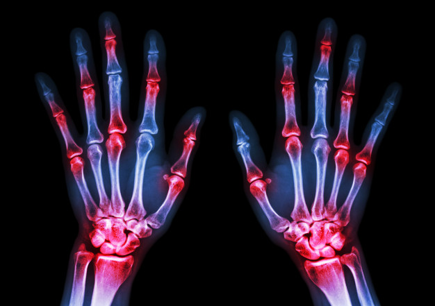 Diagnosis and Management of Rheumatoid Arthritis | El Paso, TX Chiropractor