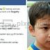Bukan Saja Dilumur Dengan Kway Tiaw, Malah Pelajar Autisme Turut Dipukul Guru Disiplin