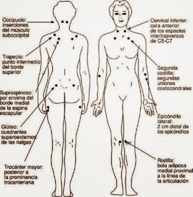 puntos mas comunes de dolor en fibromialgia