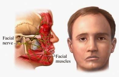 obat stroke ringan di wajah