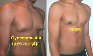 Gynecomastia-causes-symptoms-treatment-in-hindi