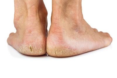 pies con talones agrietados de hombre