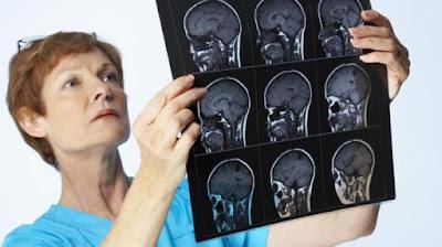 Cara Mengobati Penyakit Multiple Sclerosis (MS)
