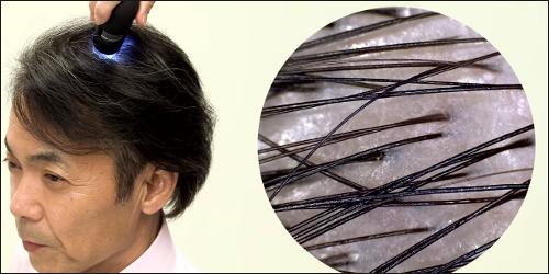 ビタブリッドCヘアーの育毛効果は?東国原英夫&口コミから考察してみた!