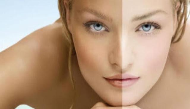 Cara Praktis Dan Alami Meratakan Warna Kulit Wajah