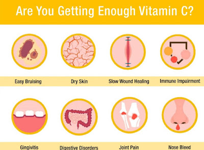 Tanda Kekurangan Vitamin C