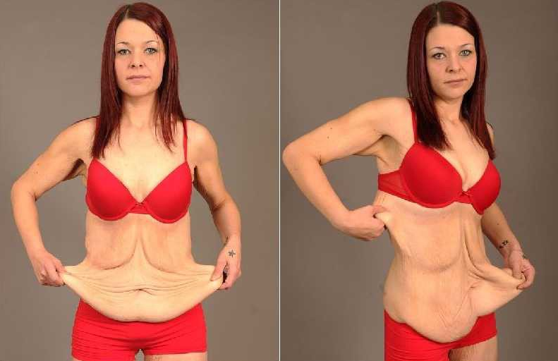 7 Ways to Tighten Skin Flabby After Weight Loss
