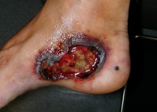 Pyoderma gangrenosum is a rare skin condition