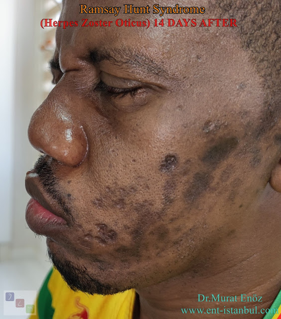 Ramsay Hunt Syndrome,Herpes Zoster Oticus, Peripheral facial paralysis, Otalgia, Vesicular rash on the external ear
