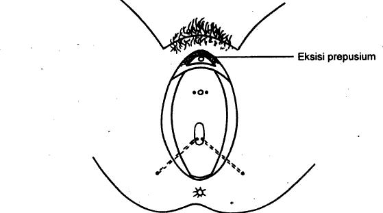Image Result For Gambar Struktur Organisasi Rumah Sakit