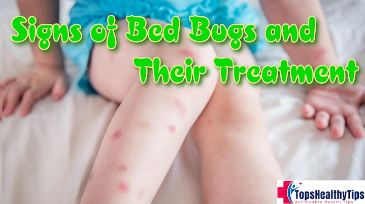 Signs of Bed Bugs and Their Treatment