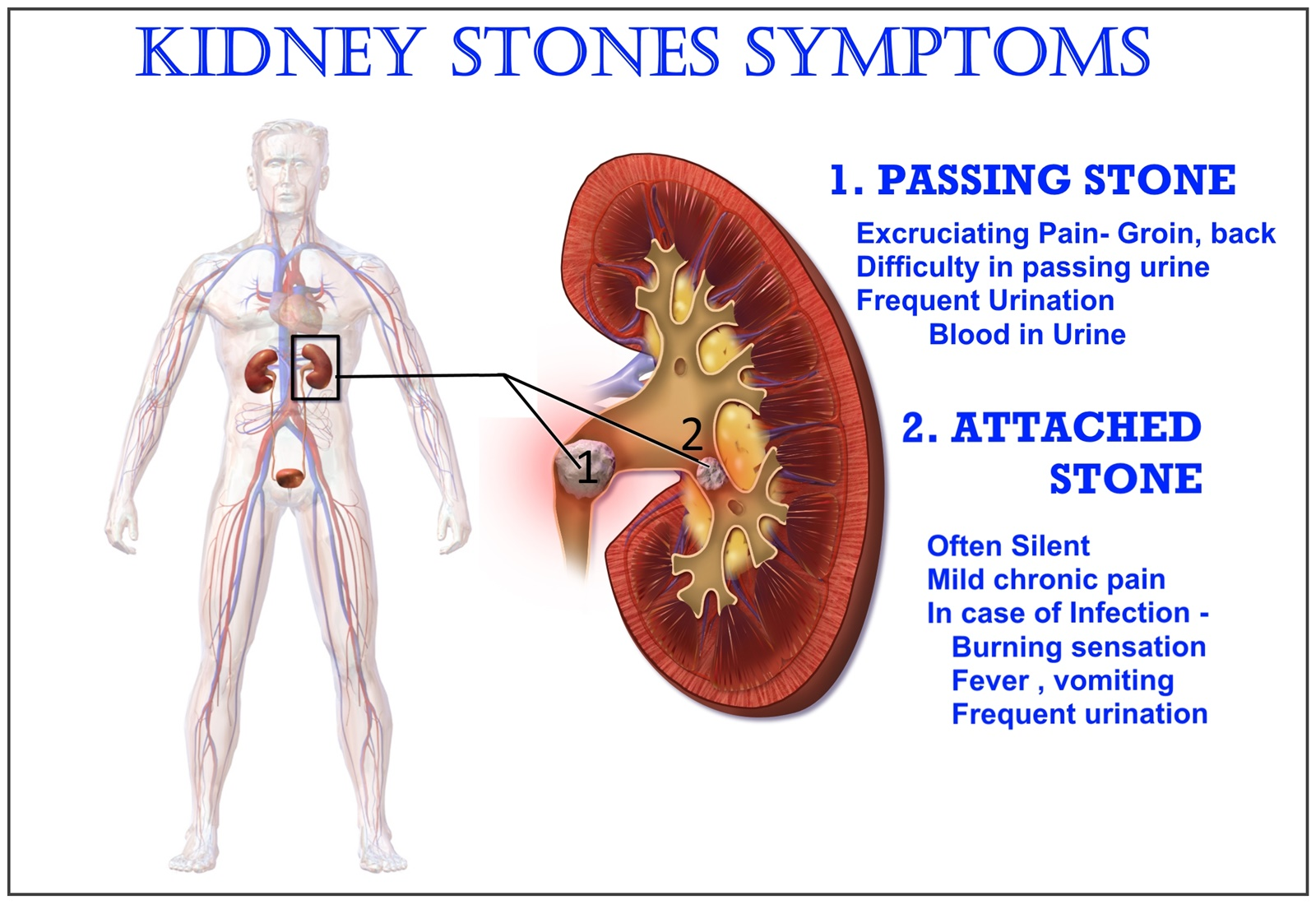 Medicine Health And You Kidney Stone Symptoms