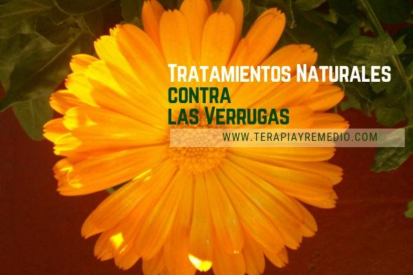 Lista de tratamiento naturales contras las verrugas por medio de Fitoterapia y Homeopatia