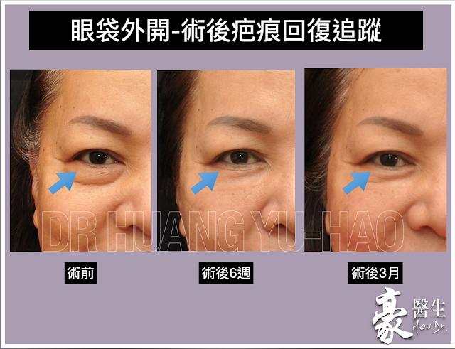眼袋外開術後護理