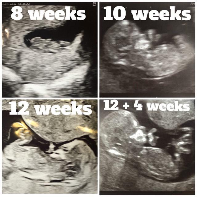 12 Weeks Pregnant - NT Baby