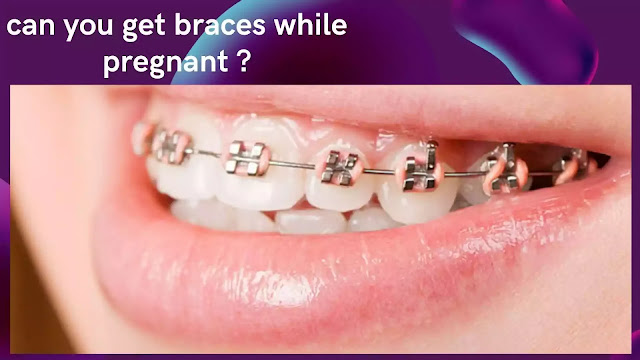 Can you get braces while pregnant? Easy and Best Information
