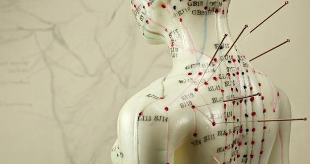 Cara Kerja Akupuntur Dalam Menangani Saraf Kejepit