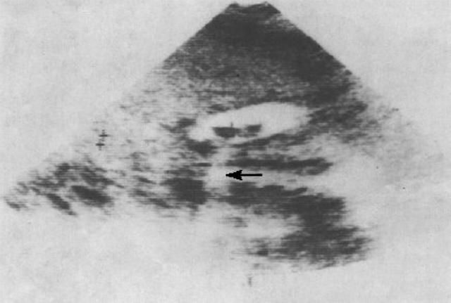 gambaran ultrasonografi batu empedu pada vesika felea yang memberikan gambaran hipoechoic dengan acoustic shadow (tanda panah) hipoekoik, hiperekoik, kandung empedu, saluran empedu, kolesterol, pigmen, campuran, patofisiologi