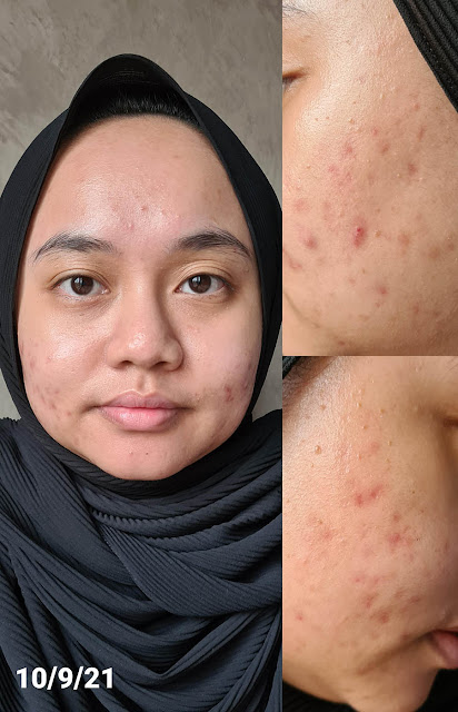 Medicube Red Foam Cleanser Review Results