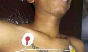 Pemuda Asal Manggarai NTT Tewas Di Keroyok Oleh Segerombolan Orang