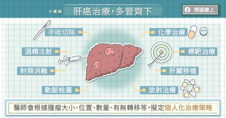 治療肝癌,多管齊下