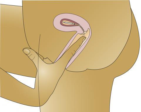 Iud y flujo vaginal sangriento