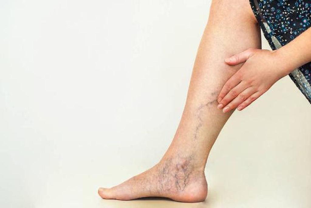 Temidas por muitos, as varizes são veias superficiais dilatadas e tortuosas que provocam alterações no relevo na pele, tornando-se visíveis. Dessa forma, as varizes, inicialmente, são problemas mais estéticos do que realmente prejudiciais à circulação.