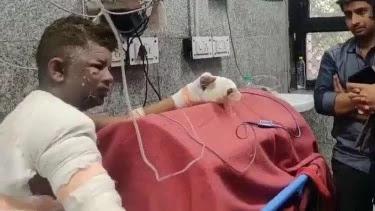 Hasil gambar untuk SATU KELUARGA MUSLIM DIBAKAR DI INDIA, PETUGAS PEMADAM DAN MEDIS TUTUP MATA