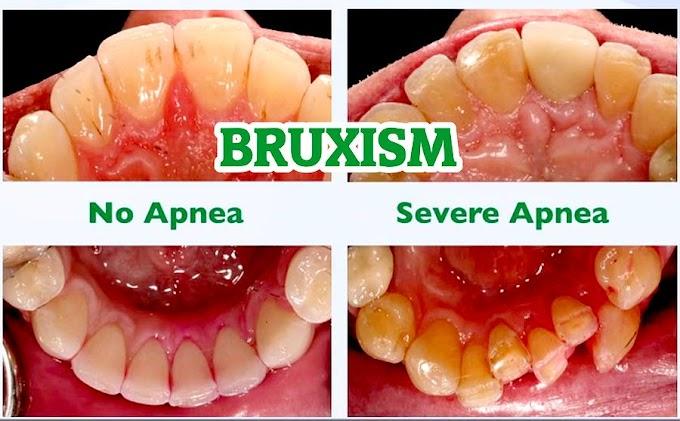 BRUXISM: No Apnea and Sleep Apnea - Gordon Christensen