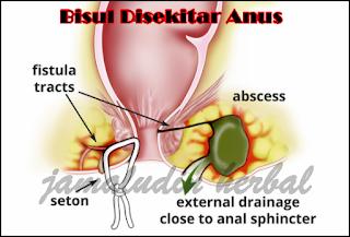 https://pengobatanmultikhasiat30.blogspot.com/2018/10/obat-tradisional-untuk-mengobati-bisul.html