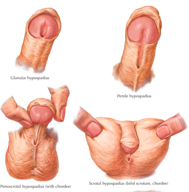 Estenosis uretral: MedlinePlus enciclopedia mdica