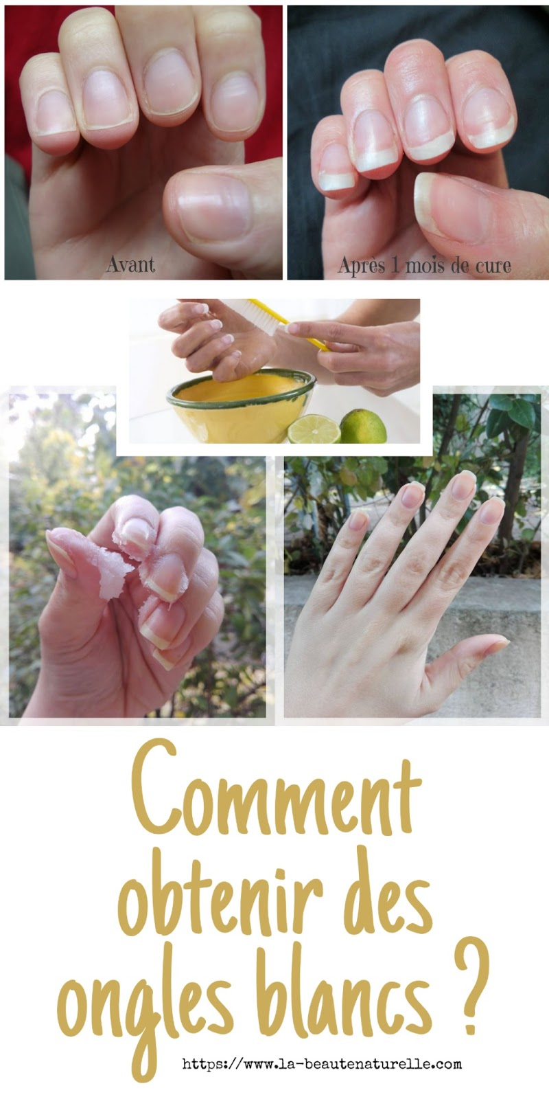 Comment obtenir des ongles blancs ?