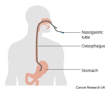 SOP Nasogastric Tube (NGT)