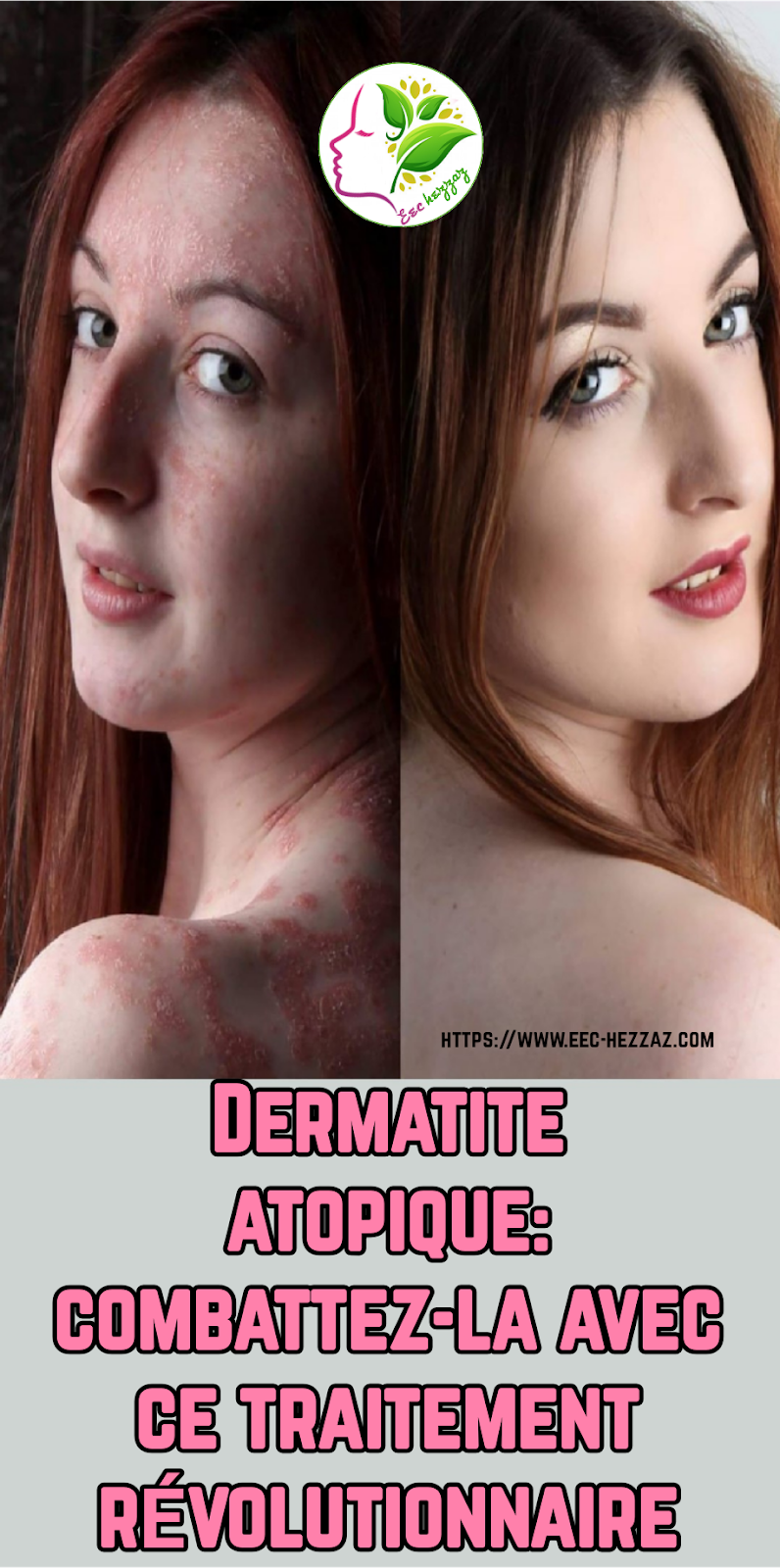 Dermatite atopique: combattez-la avec ce traitement révolutionnaire