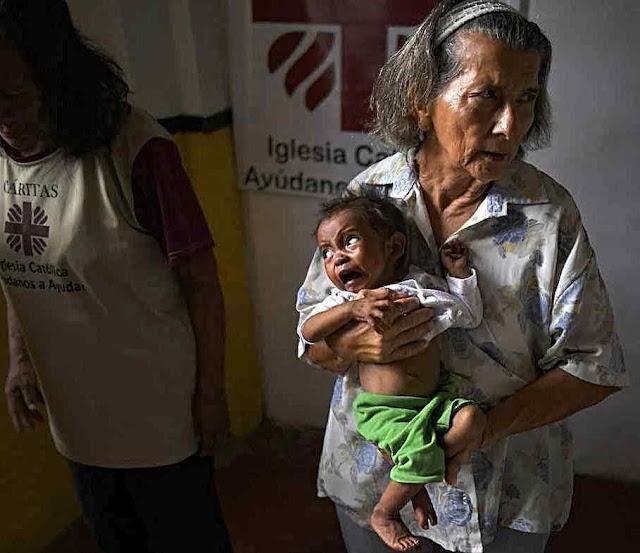 8% das crianças menores de 5 anos estão desnutridos